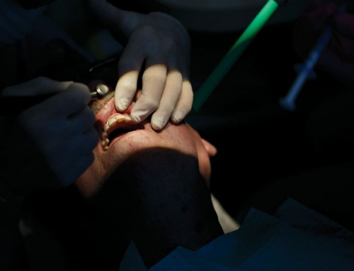 No dental insurance? Discount plans can provide savings